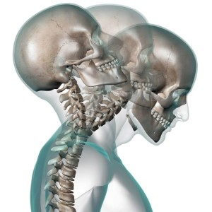 Mercer Island Chiropractic offers whiplash relief in the Duvall, WA area.